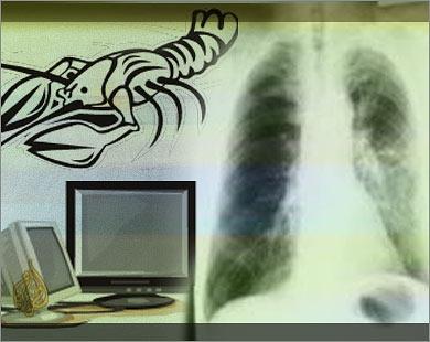 تجربة علاج كيميائي لسرطان الرئة تظهر إمكانات واعدة