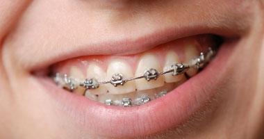 طبيب أسنان: التقويم المتحرك ليس حلا لعلاج بروز الأسنان