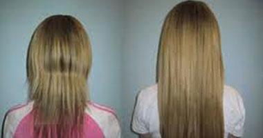 علماء ينجحون فى استنبات شعر بشرى من خلال زراعة خلايا
