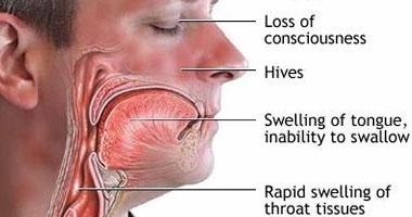 استشارى أنف وأذن: الغرغرة بالماء الدافئ تقى من التهابات الحلق