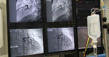 باحثون أمريكيون: أداة جديدة لتقليل مضاعفات القسطرة القلبية