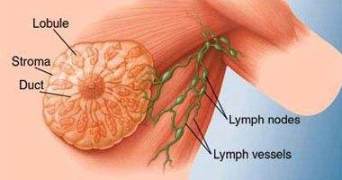 دراسة: مريضات السرطان يفضلن إعادة بناء الثدى بالأنسجة الخاصة بهن