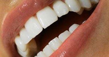 تجميل الأسنان لا يجعلها جذابة وناصعة البياض مثل الصور الدعائية
