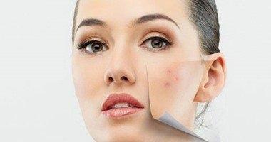 أخصائية أمراض جلدية: الاضطرابات الهرمونية تسبب انتشار البثور بالبشرة