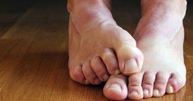 أسباب تكرار الإصابة بالتهابات القدم وطرق تجنبها