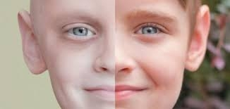 السرطان وأهداف علاجه