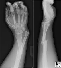 ورشة لتدريب شباب جراحى العظام على الإصابات والكسور بالإسكندرية