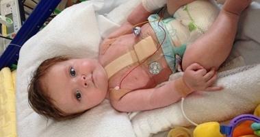 باحثون : فيروس معوى غامض يصيب الأطفال الأمريكيين