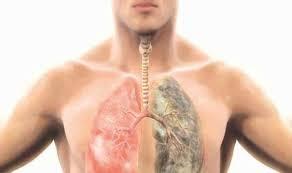 أساتذة الصدر والشعب الهوائية فى مؤتمرين يؤكدون: التلوث والتدخين أهم مسببات تليف الرئة والسدة الرئوية المزمنة
